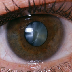 Myth or Fact: A cataract must be 'advanced' before it is removed?